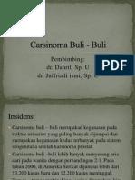 Carsinoma Buli - Buli