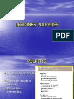 PULPITIS (1).ppt