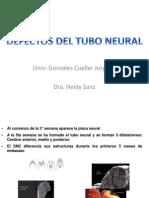 JDGC Defecto Tubo Neural