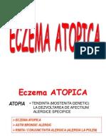 Eczema Atopica