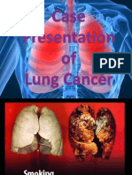 Presentation Lung Cancer Latest