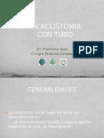 Toracostomía Con Tubo de Tórax