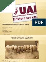 Puente Odontogico Ana