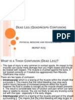Dead Leg (Quadriceps Contusion)