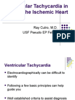 Ventricular Tachycardia in the Ischemic Heart[1]