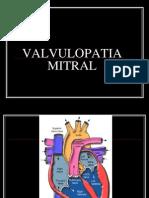 Valvulopatia Mitral Clase