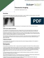 Typical Bacterial Pneumonia Imaging
