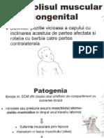 Torticolisul Muscular Congenital Si Fractura de Clavicula