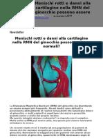 Newsletter Menischi Rotti Alla RMN - Dott Raffaello Riccio - www.raffaelloriccio.com