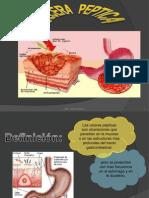 Presentación1seminario ulcera peptica
