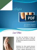 onicofagia-120905205906-phpapp02
