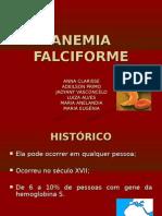 ANEMIA FAlciforme Luiza