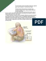 torakosintesis 2