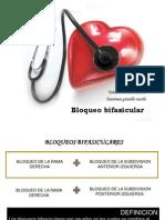 bloqueo bi fasicular
