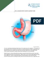 Laparoscopic Sleeve Gastrectomy