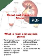 renal stone