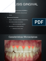 Análisis Gingival