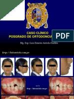 CASO CLÍNICO 1 TÉCNICA ESTANDAR