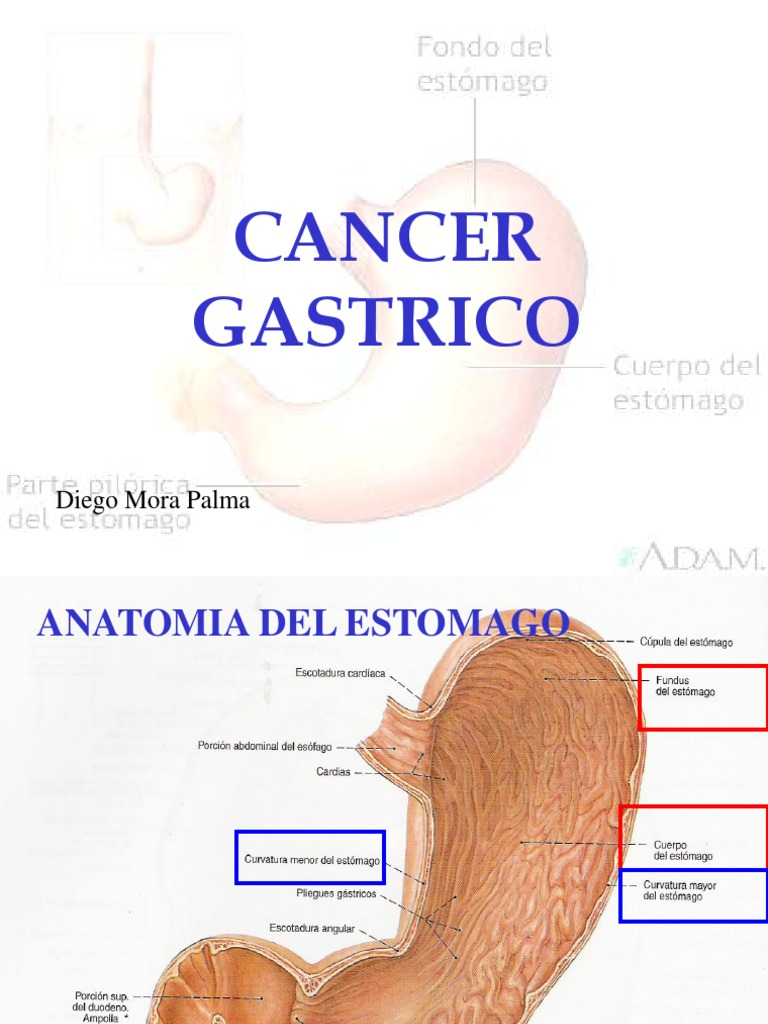 Cancer Gastrico Expo