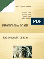 IMAGENOLOGIA DE LA ATM