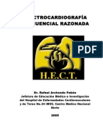 sodi pallares electrocardiografia pdf