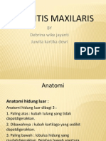 PPT Sinusitis Maxilaris.ppt 222