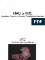 Mandibular Advancement Device & Rapid Maxillary Expansion
