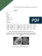 Periosteal Reaction