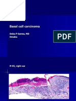 Basal Cell Carcinoma, M 85, Right Ear
