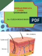 QUEMADURAS31
