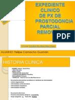 Prostodoncia removible 2