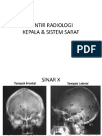 Tentir Radiologi Resti-Deef