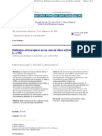 Arthroscopic Findings in a Fixed Disc Case of the TMJ
