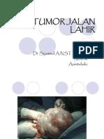 tumor jalan lahir