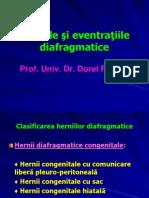 herniile