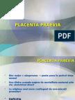 Placenta Praevia.dppnI