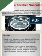 evento cerebro vascular