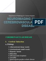 stroke,Neuroimaging in Cerebrovascular Disease