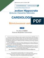 rétricissement aortique