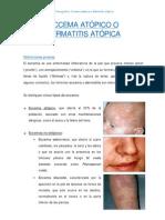 Eccema Atopico o Dermatitis Atopica