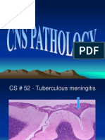 CNS PATHOLOGY SLIDES