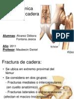 Biomecánica fractura de cadera