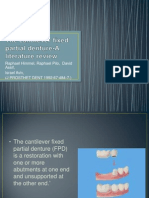 The Cantilever Fixed Partial Denture-A Literature Review