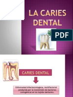 La Caries Dental