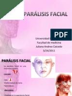 Presetación Parálisis Facial