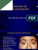 SINDROME DE BLEFAROFIMOSIS
