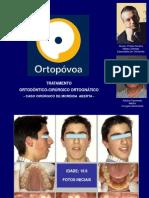 CASO TOCO - Tratamento Ortodôntico-Cirúrgico-Ortognático