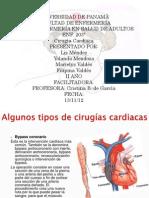 Cirugias cardiacas