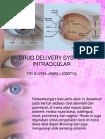 DDS Intraocular