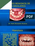 tumores benignos de los maxilares